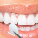 Veneers in Crowthorne